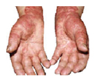 Psoriasis on hands.